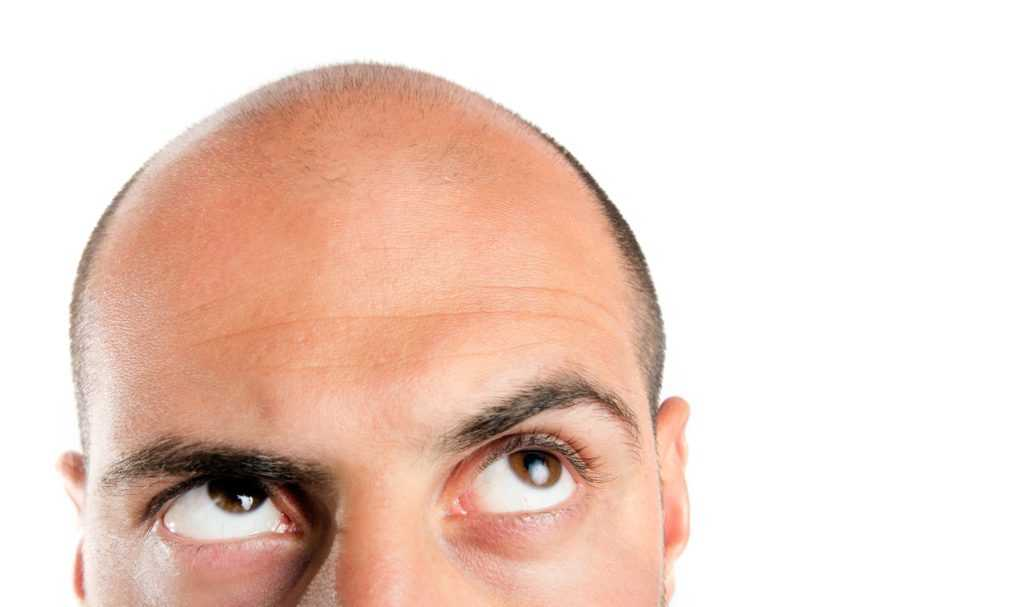 Hair Loss: What Causes Your Hair To Fall Out?